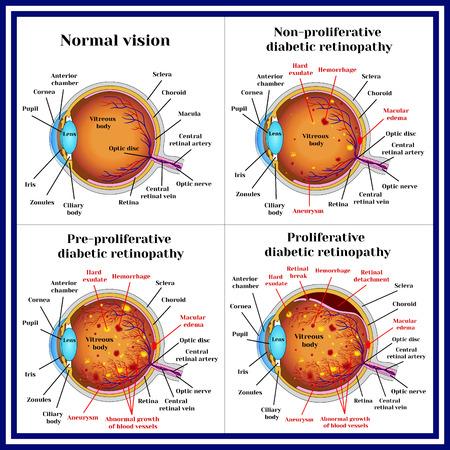 Types of diabetic retinopathy: non-proliferative, pre-proliferative diabetic retinopathy, proliferative retinopathy of retina.