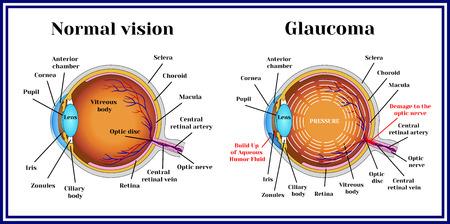 Normal vision. Glaucoma. Chronic eye pathology. Illustration