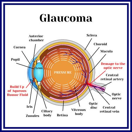 La visión normal. Glaucoma. patología crónica en los ojos. Foto de archivo - 73478891