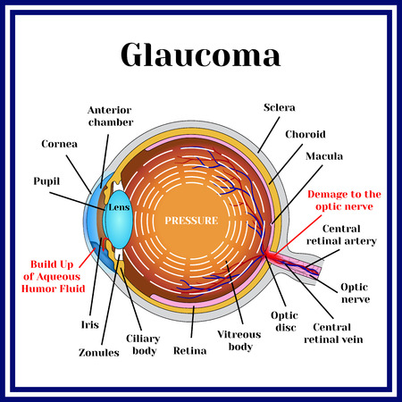 detachment: Normal vision. Glaucoma. Chronic eye pathology. Illustration