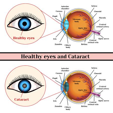 Healthy eyes and cataract (opacity of the eye lens). Ilustracja
