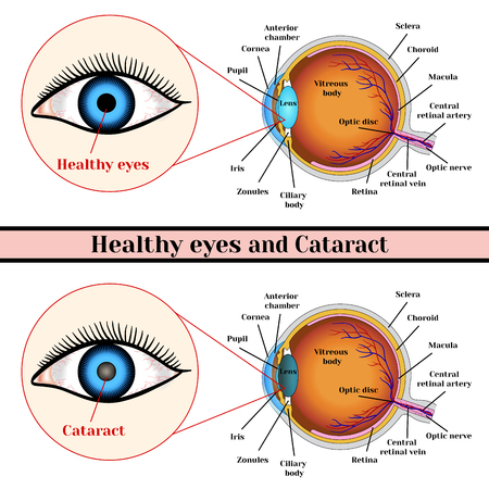 Healthy eyes and cataract (opacity of the eye lens). Illustration