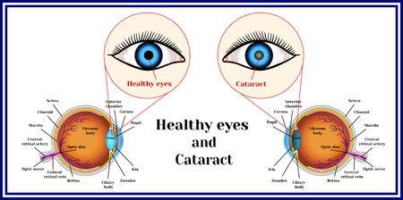 Healthy eyes and cataract (opacity of the eye lens). Ilustração