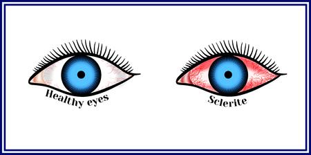 Sclerite。強膜の炎症性疾患。