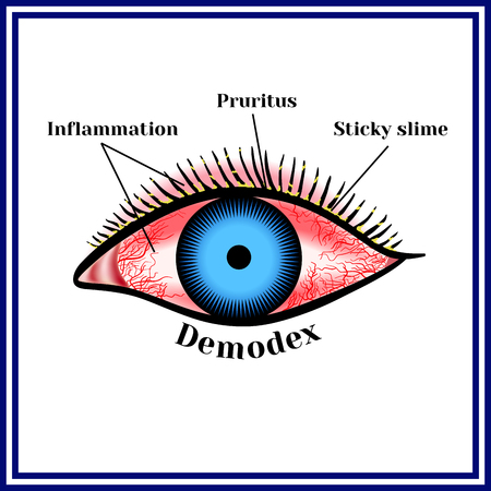 Demodex。寄生の眼疾患。