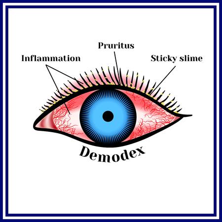 Demodex. Parasitic eye disease. Zdjęcie Seryjne - 78078677