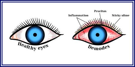 Demodex. Parasitic eye disease.