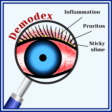 Demodex. Parasitic eye disease.
