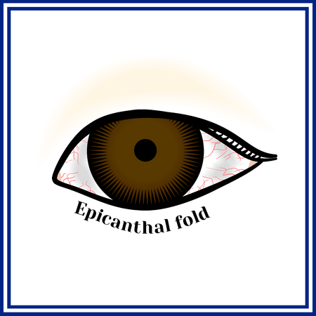 specificity: Epicanthal fold. Fold at the inner corner of the eye.