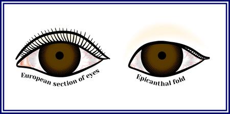 モウコ襞。目の内側の隅を折る。