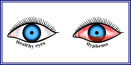 Hyphema - hemorrhage in the anterior chamber of the eye. Ilustracja