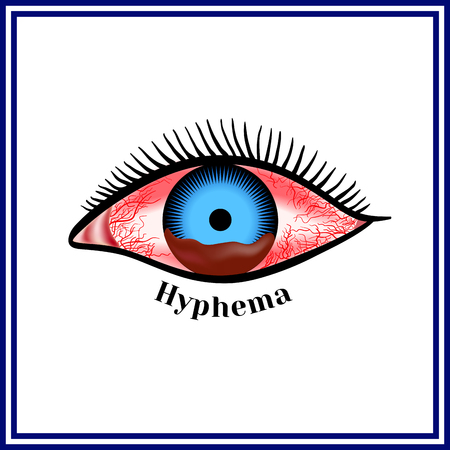 Hyphema - hemorrhage in the anterior chamber of the eye. Illustration