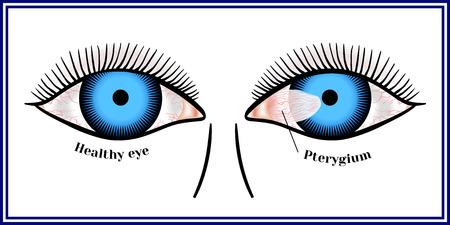 翼状片。角膜の目の結膜の広がり。