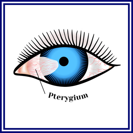 Pterygium. Spreading of the conjunctiva of the eye on the cornea. Zdjęcie Seryjne - 81496372
