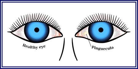 瞼裂斑。黄色の良性腫瘍。