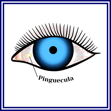 Pinguecula. Benign neoplasm of yellow color.