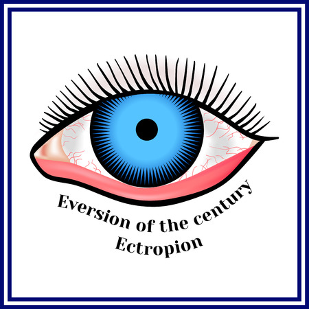Ectropion. Eversion of a century. Zdjęcie Seryjne - 81496376