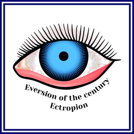 eye close up: Ectropion. Eversion of a century.