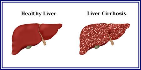 健康な肝臓と肝硬変。