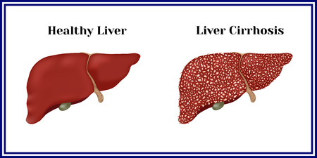 Healthy liver and cirrhosis.