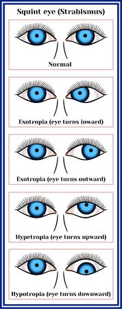 Squint eye (Strabismus). Deflection of visual axes, vector illustration.