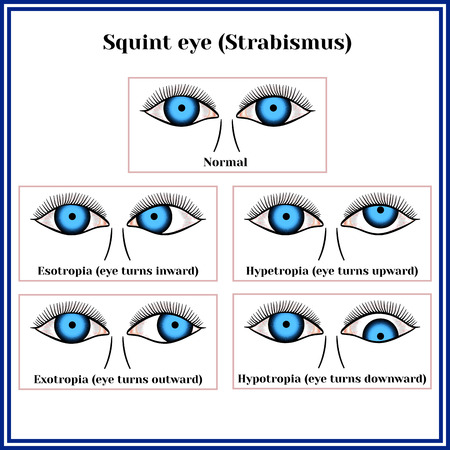 Squint eye (Strabismus). Deflection of visual axes, vector illustration.
