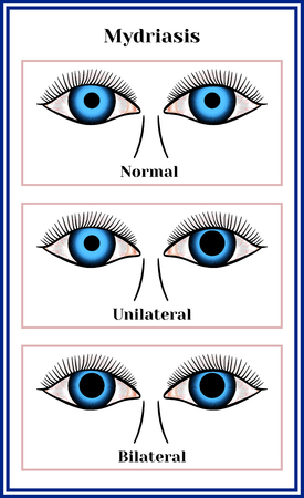 Mydriasis, expansion of a pupil chart illustration. Vectores