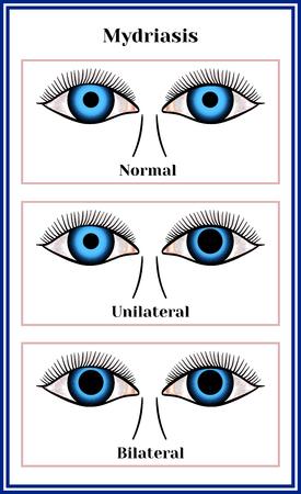 Mydriasis, expansion of a pupil chart illustration. Illustration