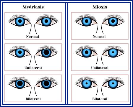 マイドリア症 - 瞳孔およびミオシスの拡大 - 瞳孔チャート図図の狭窄。