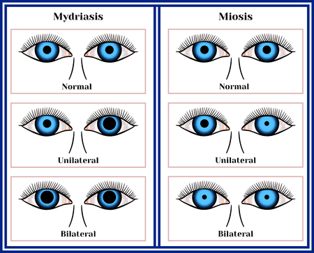 Mydriasis - expansion of a pupil and  Miosis - narrowing of a pupil chart illustration. Illustration