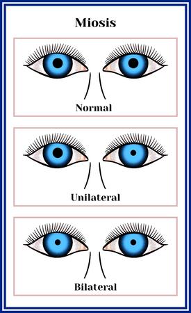 Miosis - narrowing of a pupil chart illustration.