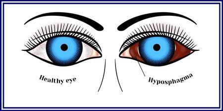 Hypospagma - hemorrhage in the sclera, or subconjunctival hemorrhage.