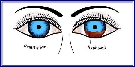 Hyphema - hemorrhage in the anterior chamber of the eye.