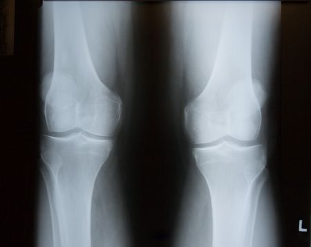 X-Ray Image of Knees.  Both Left and Right Legs are included. Banco de Imagens