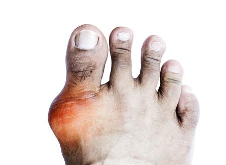 痛風は足の親指の