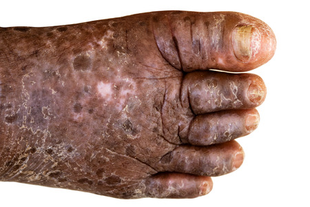 skin disease: skin disease on foot