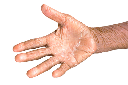 adverse reaction: skin disease on hand isolate on white background