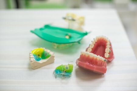 Color Orthodontic teeth models dental education model jaws with half ceramic and half metal bracket Teeth and Jaw Models Stock Photo - 129404164