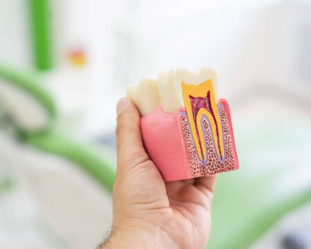 Anatomy of a dental model concept of a dentist cross section for education. The dentist holds a mock tooth in section in the office.