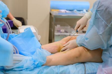 Cosmetic surgery liposuction. The process of removing fat on the legs of a fat woman. Without face, unrecognizable patient.