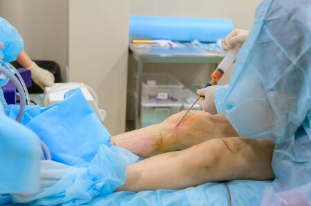 Cosmetic surgery liposuction. The process of removing fat on the legs of a fat woman. Without face, unrecognizable patient 写真素材