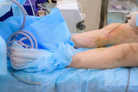 Cosmetic surgery liposuction. The process of removing fat on the legs of a fat woman. Without face, unrecognizable patient. 写真素材