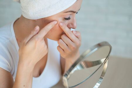 Caucasian woman with a white terry towel on her head crushes pimple. Problem skin during menstruation. Acne and hyperandrogenism due to hormonal disorders.
