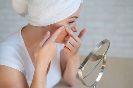 A Caucasian woman with a white terry towel on her head looks in the mirror and crushes pimple. Problem skin during menstruation. Acne and hyperandrogenism due to hormonal disorders.
