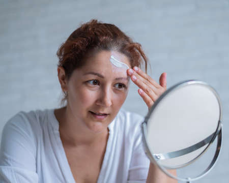 Portrait of a Caucasian woman with vitiligo uses sunscreen. A girl with a white pigment spot on her forehead looks in the mirror and is smeared with cream.