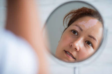 A woman with vitiligo looks in the mirror. Reflection in a table mirror a girl with a white spot on her forehead. Autoimmune disease. Lack of skin pigmentation.