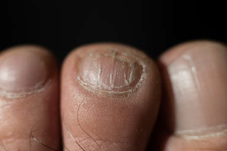 Close-up of male toes with a cracked nail Stockfoto