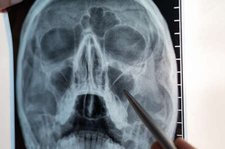X-ray of the human head. The doctor points out the signs of sinusitis