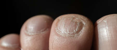Close-up of male toes with a cracked nail Foto de archivo