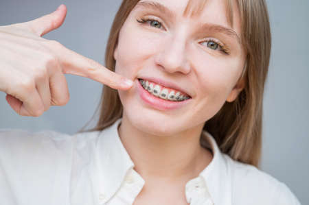 A beautiful red-haired girl smiles and points to the braces. Young woman corrects bite with orthodontic appliance